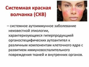 Инвалидность при скв в россии