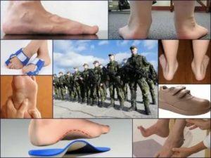 Берут в военное с плоскостопием второй степени